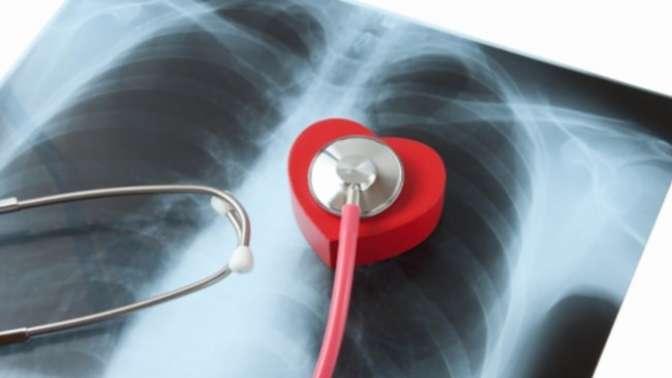 Sinsi tehlike: Akciğer Embolisi